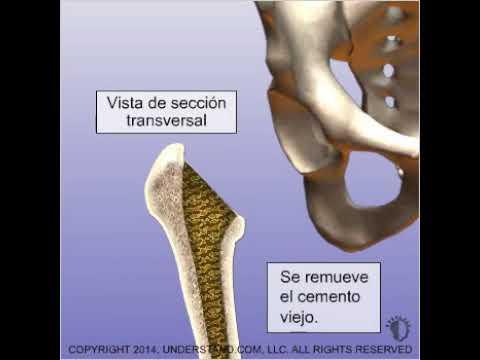 Ligamento longitudinal de la columna vertebral cervical