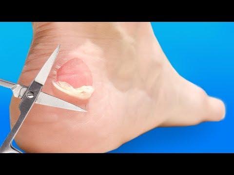 Durere ascuțită la glezna piciorului stâng