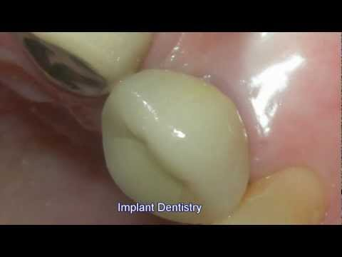 Implant Dentistry Los Angeles