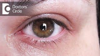 How to treat eye redness & pain? - Dr. Sriram Ramalingam