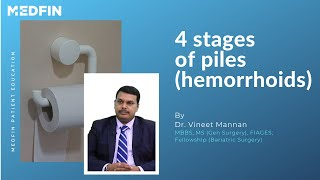 What are the various stages of Piles?