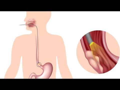 Рак пищевода первые симптомы