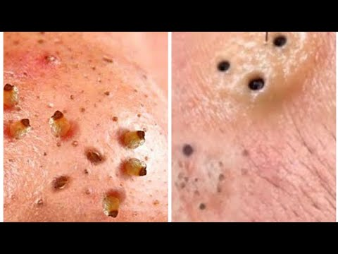 Video Black Head Removal From Infected Face || Oddly Satisfying