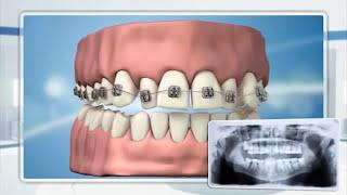 Чистка ортодонтических конструкций и брекетов