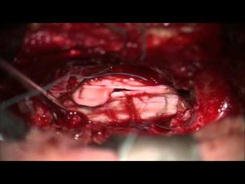 Zervikale Osteochondrose und Neurose Forum