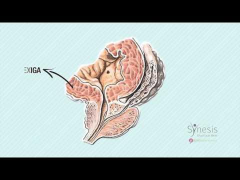 Fármacos para la prevención de prostatitis