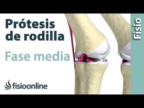 Tratamiento hospitalario de la osteoartritis de la rodilla