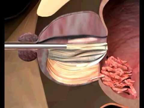 Предстательная железа после операции тур