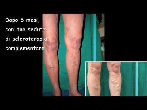 Cibo di medicina a varicosity