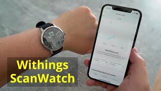 Hybrid-Smartwatch Withings ScanWatch Test Fazit nach einem Monat!