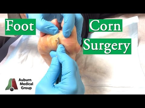 Video Foot Corn Surgery Treatment