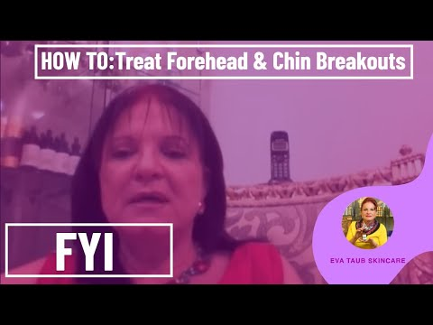 Video How to Treat Forehead & Chin Breakouts