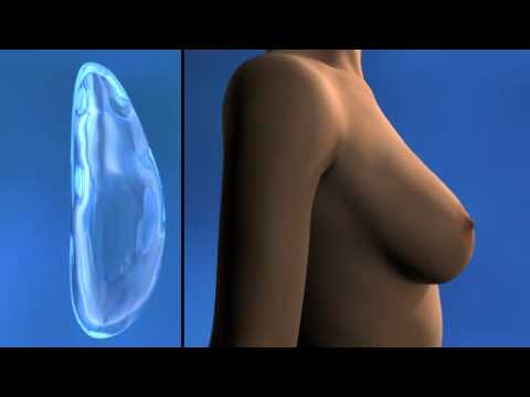 La plastique de la poitrine comme naturel