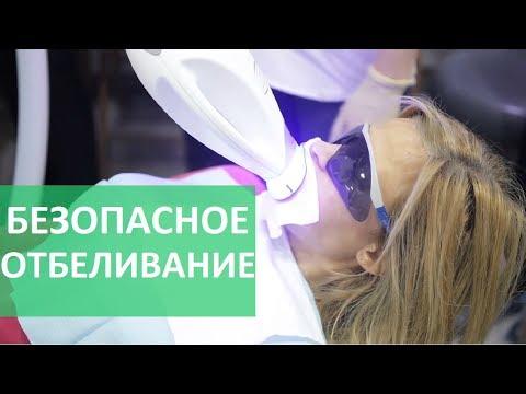 Безопасное отбеливание зубов. 😃 ZOOM 4 инновационная система безопасного отбеливания зубов.