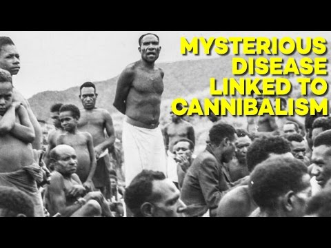 Video The MYSTERIOUS Disease that Emerged When People Ate People