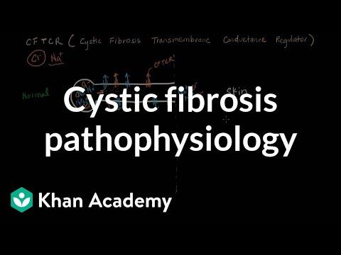 Cystic fibrosis pathophysiology (video)   Khan Academy