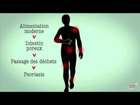 Le traitement et le diagnostic du psoriasis des photos
