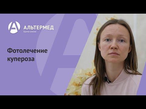 Удаление пигментных пятен на лице лазером омск