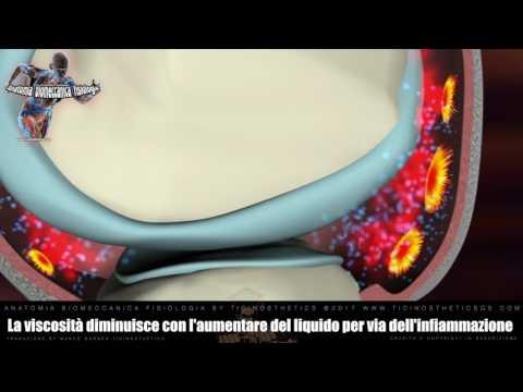 Neurite dellarticolazione della spalla come viene trattata