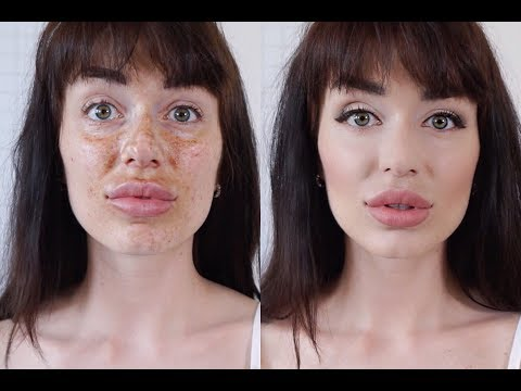Отбеливание кожи после загара