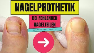 Nagelprothetik bei fehlenden Nagelteilen anfertigen - so geht es!