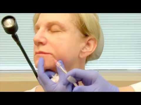 Facial mask na may aspirin at lemon para sa acne