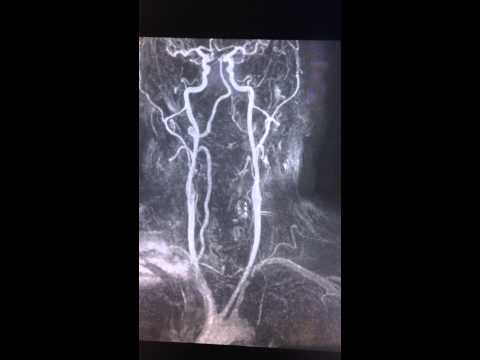 Subclavian Steal Syndrome - Neck MRI