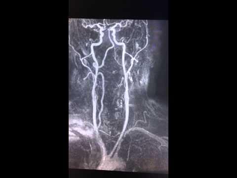 Zespół podkradania tętnicy podobojczykowej - RM szyi
