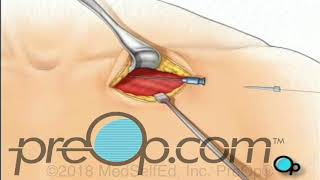 Permanent Pacemaker Implant Surgery - PreOp®  Patient Education
