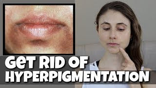 GET RID OF HYPERPIGMENTATION AROUND THE MOUTH| DR DRAY