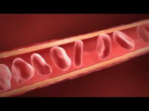 Пониженное содержание сахара в крови симптомы