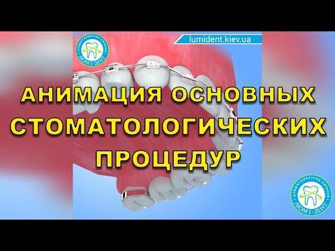 Лікування зубів по медичній страховці - Люмі-Дент 80ccfc3907746