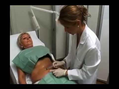 Si ayuda pilates librarse de la celulitis