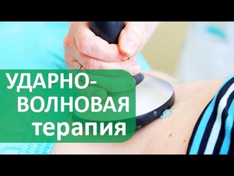 Ударно-волновая терапия. 💃Лечение суставов, связок и мышц ударно-волновой терапией.