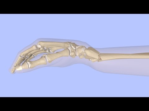 Verformen Arthrose des Knies Klinik