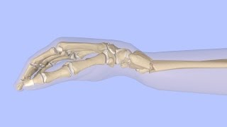 Closed Reduction of a Distal Radius Fracture