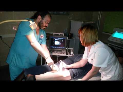 Лечение кисты Бейкера без операции