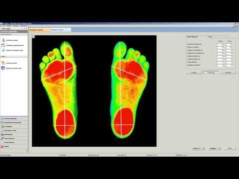 Che per trattare il dolore alle articolazioni del gomito
