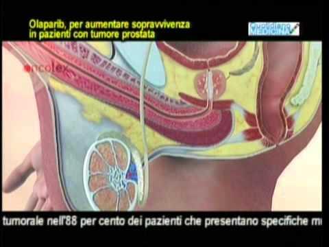 Cosa fare se diagnosticato un cancro alla prostata