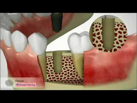 Các bước phục hình răng bằng kĩ thuật cấy ghép implant.. !