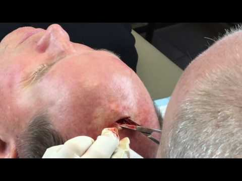 Dr. Geoff Butler: Lipoma on Scalp!