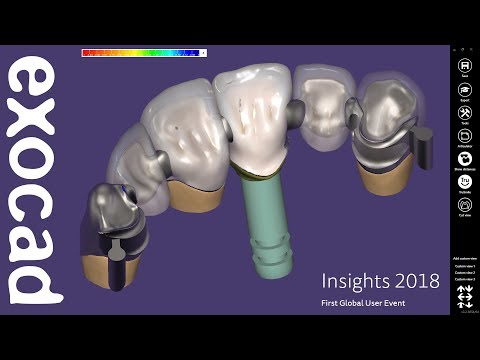 INSIGHTS 2018: DentalCAD Case Demonstration - Bridge with attachments and partial Part I
