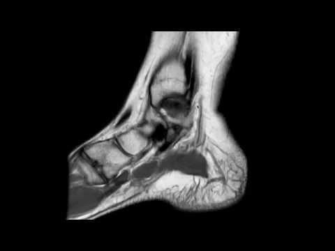 Tendinite legamento laterale del ginocchio