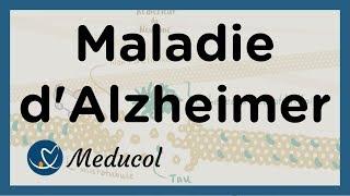 Alzheimer - Maladie Alzheimer : définition, symptômes, causes, stades, et traitement