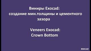 Виниры Exocad:2)Создание мин. толщины и цементного зазора в Exocad / Veneers Exocad:2) Crown Bottom