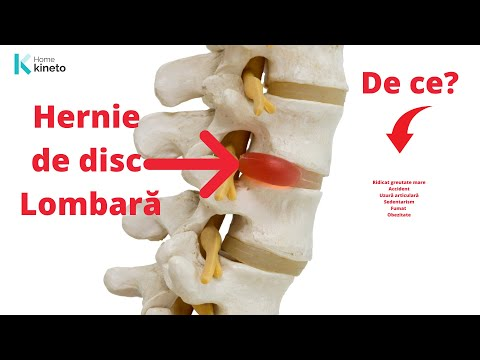 Ganglionii cervicali dureri articulare