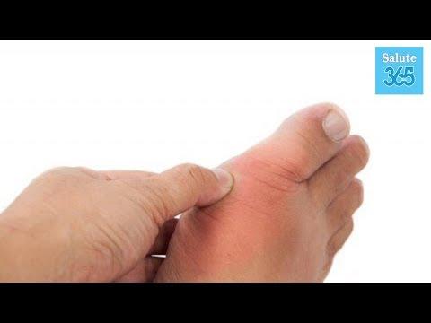 Farmaci per aumentare la potenza di prostatite cronica