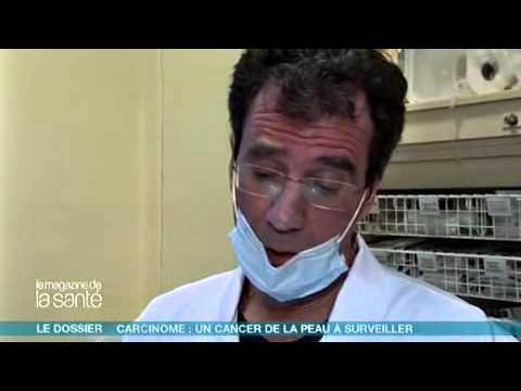 Les taches de pigment sur le corps chez lenfant chez quel médecin