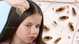 How To Get Rid Of Head Lice Fast And Easy   Health And Beauty