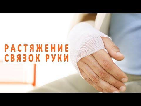 Растяжение связок руки и его лечение